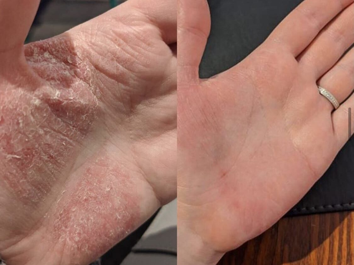Tree Resin and Eczema Relief