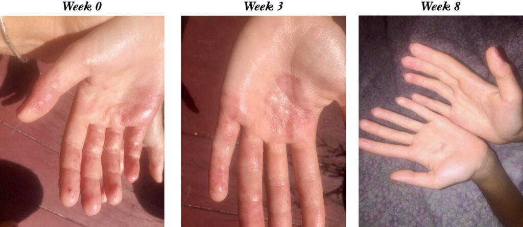 Neutral Skin Saver 3 and 8 week result 2