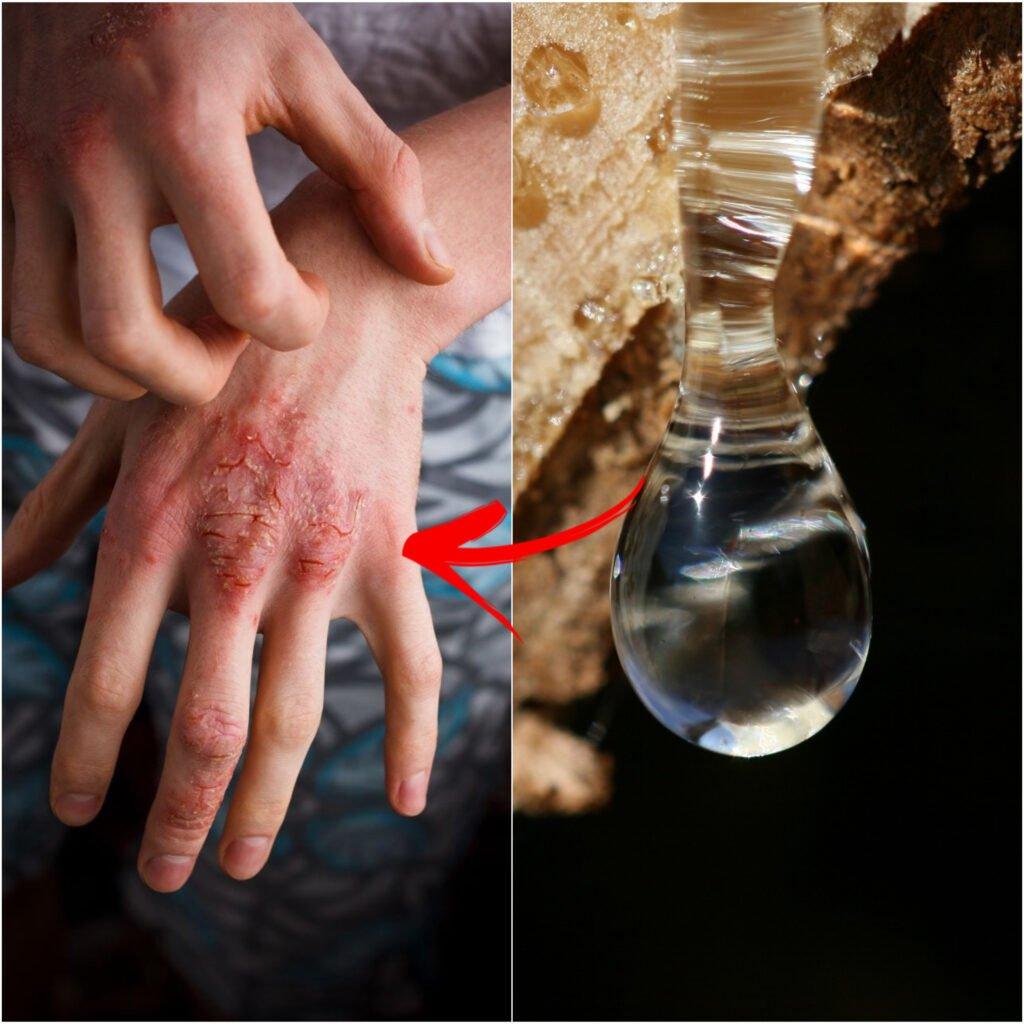 Skin healing and resins