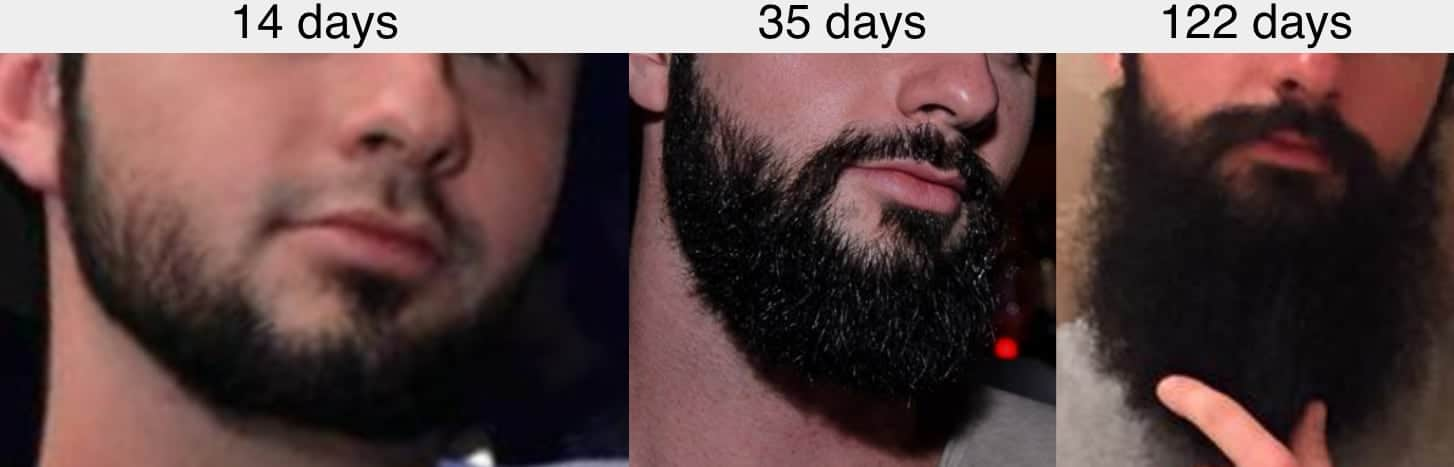Beard blends hair growth 122 days