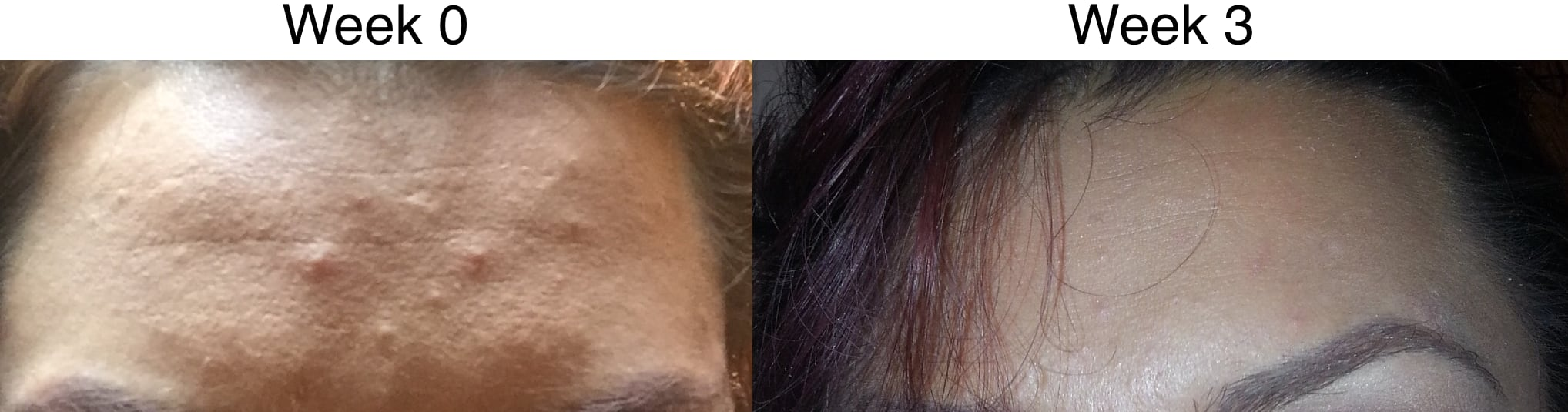 Clear Skin Result 1